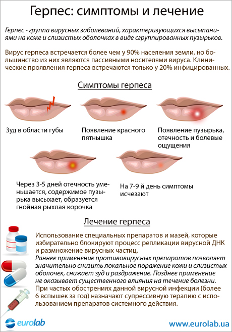 Infographic about clinical manifestations of labile herpes
